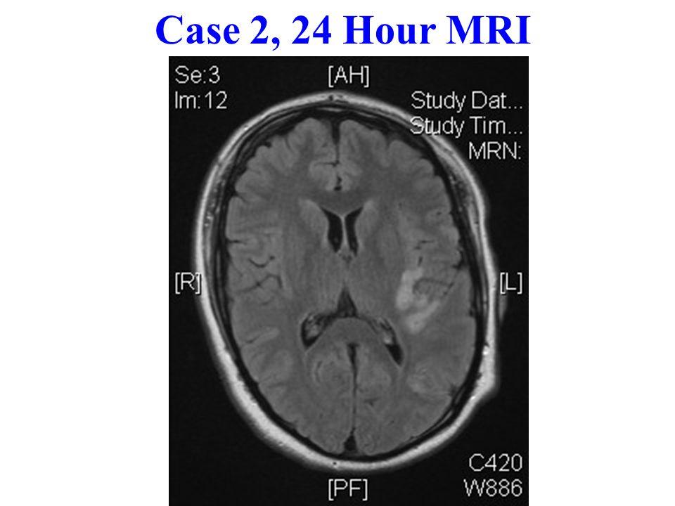 Case 2, 24 Hour MRI