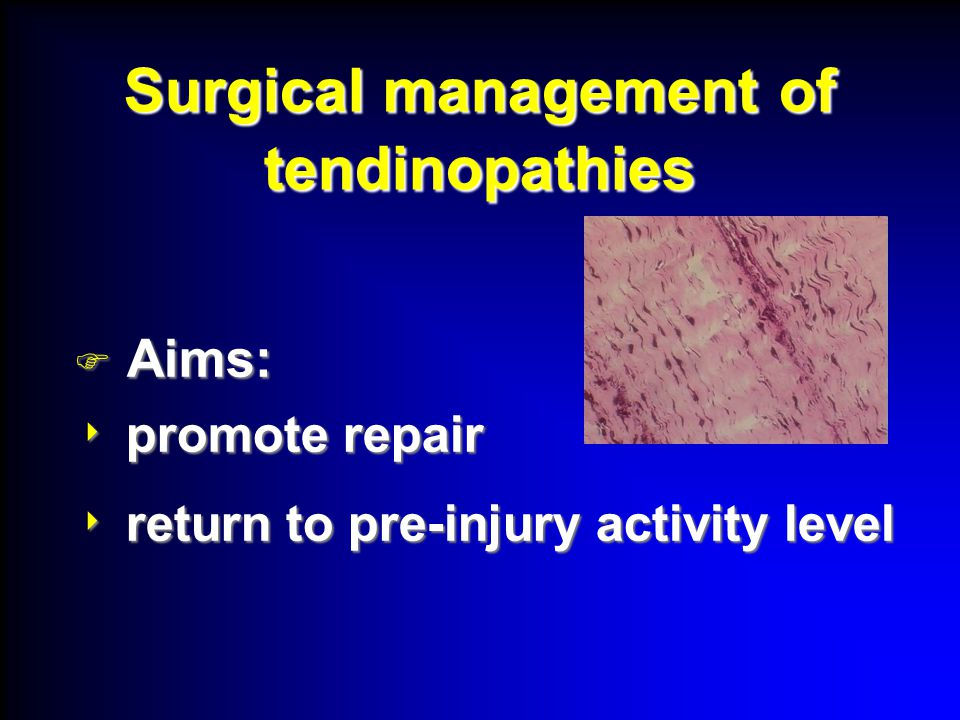 Surgical management of tendinopathies  Aims:  promote repair  return to pre-injury activity level