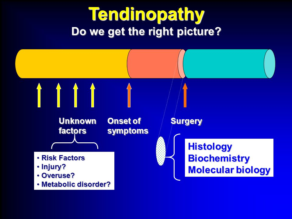 Tendinopathy Confusion Confusion