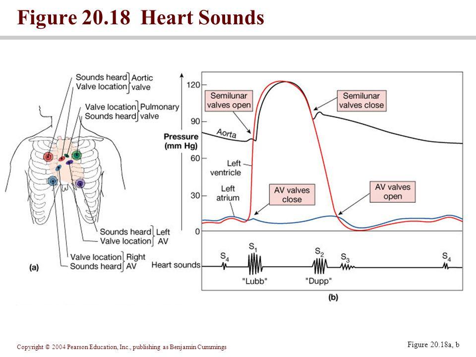 Copyright © 2004 Pearson Education, Inc., publishing as Benjamin Cummings Figure 20.18 Heart Sounds Figure 20.18a, b