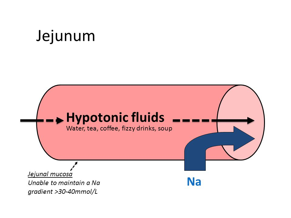 Jejunum Hypotonic fluids Na Water, tea, coffee, fizzy drinks, soup Jejunal mucosa Unable to maintain a Na gradient >30-40mmol/L