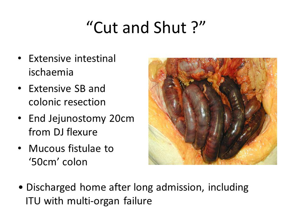 """""""Cut and Shut ?"""" Extensive intestinal ischaemia Extensive SB and colonic resection End Jejunostomy 20cm from DJ flexure Mucous fistulae to '50cm' colo"""