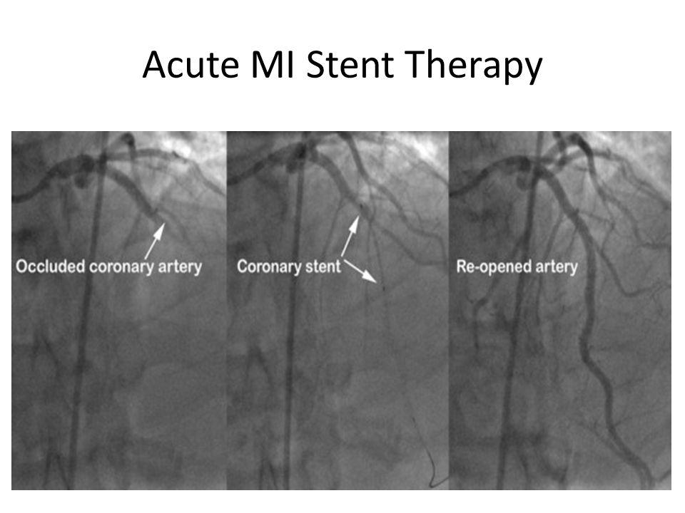 Acute MI Stent Therapy