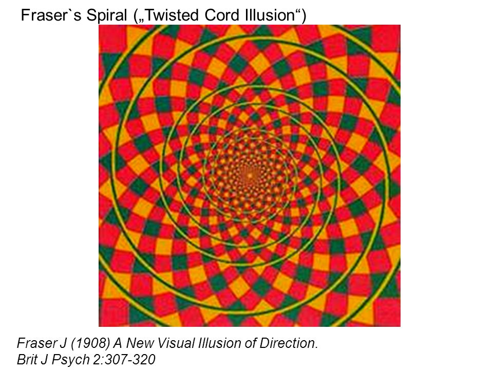 "Fraser`s Spiral (""Twisted Cord Illusion ) Fraser J (1908) A New Visual Illusion of Direction."