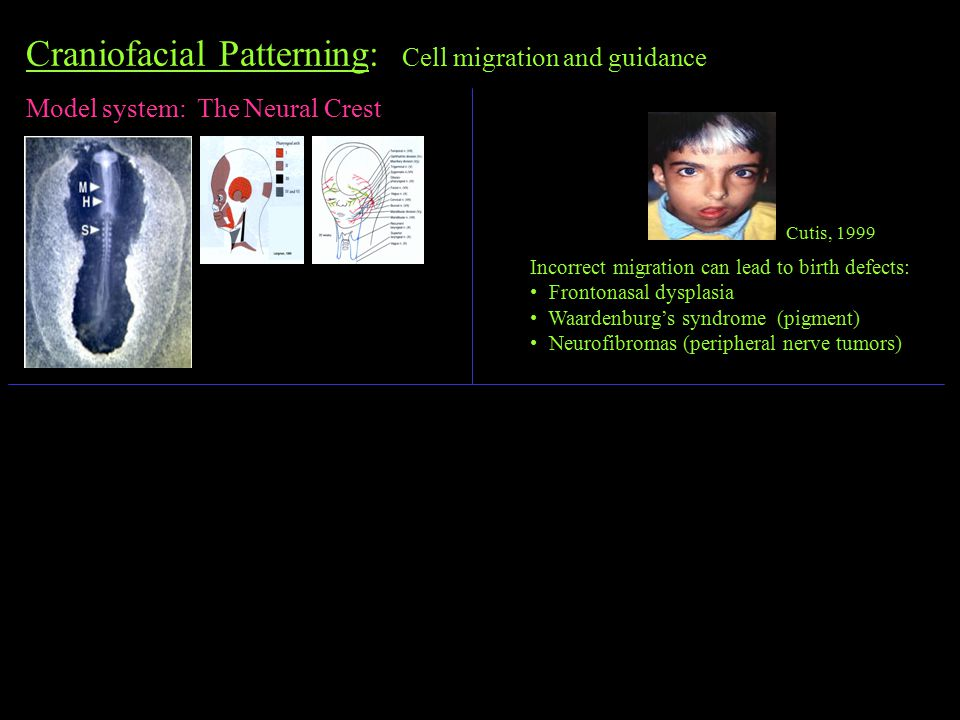Craniofacial Patterning: Cell migration and guidance Model system: The Neural Crest Cutis, 1999 Incorrect migration can lead to birth defects: Frontonasal dysplasia Waardenburg's syndrome (pigment) Neurofibromas (peripheral nerve tumors)