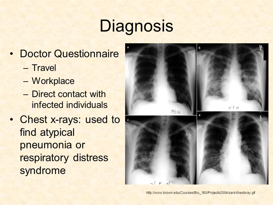 Diagnosis Doctor Questionnaire –Travel –Workplace –Direct contact with infected individuals Chest x-rays: used to find atypical pneumonia or respiratory distress syndrome http://www.brown.edu/Courses/Bio_160/Projects2004/sars/chestxray.gif
