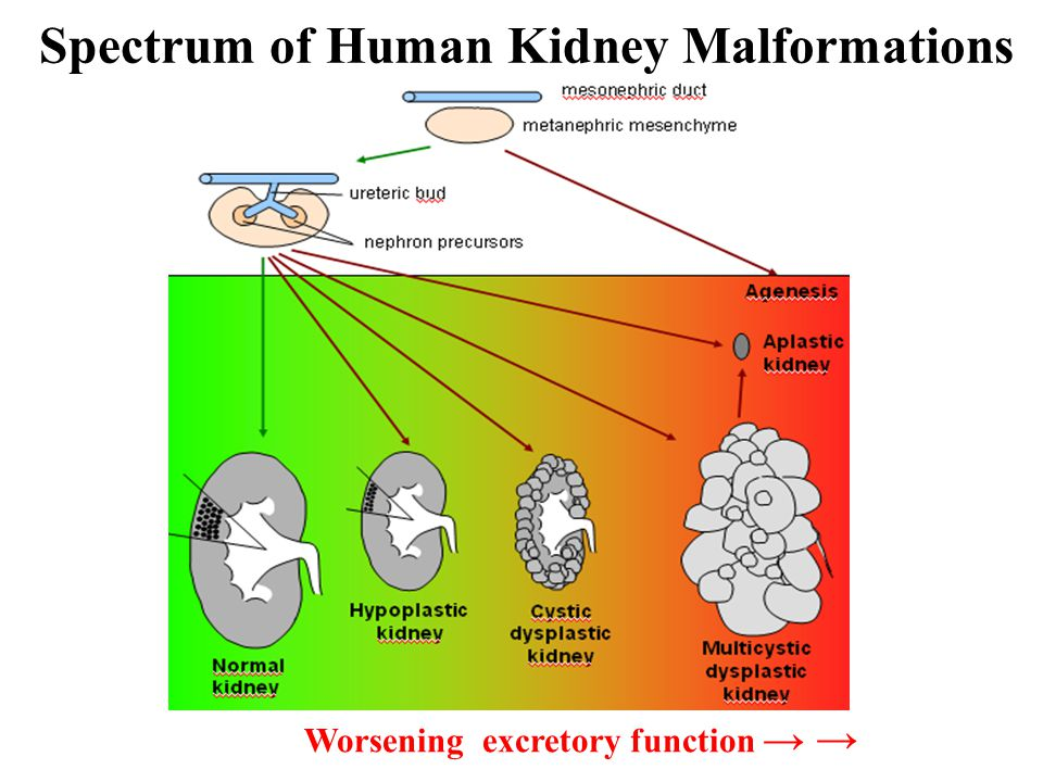 Worsening excretory function → → Spectrum of Human Kidney Malformations