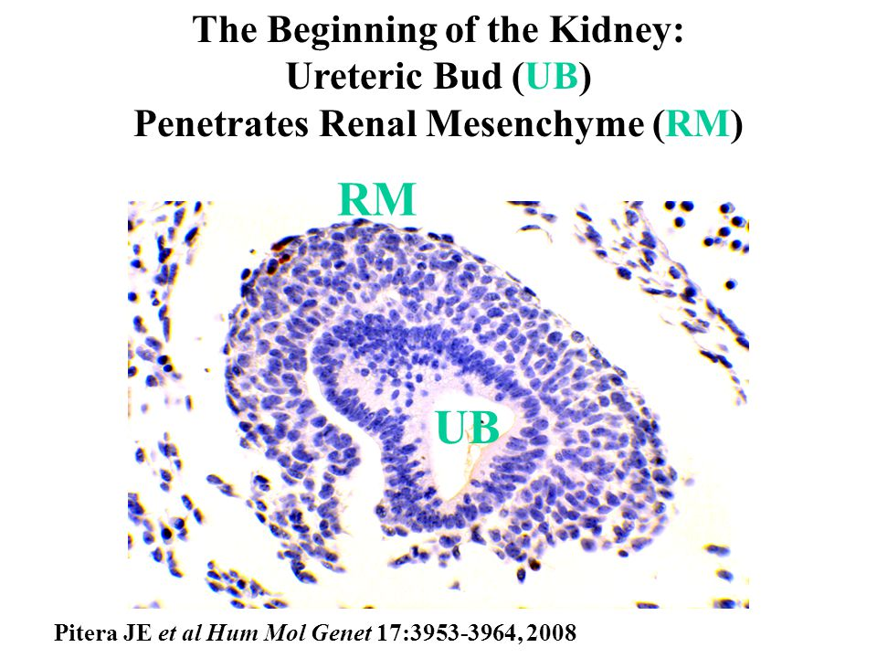 IN FRASER SYNDROME THE URETERIC BUD (UB) FAILS TO PENETRATE RENAL MESENCHYME (RM) RM UB Pitera JE et al Hum Mol Genet 17:3953-3964, 2008