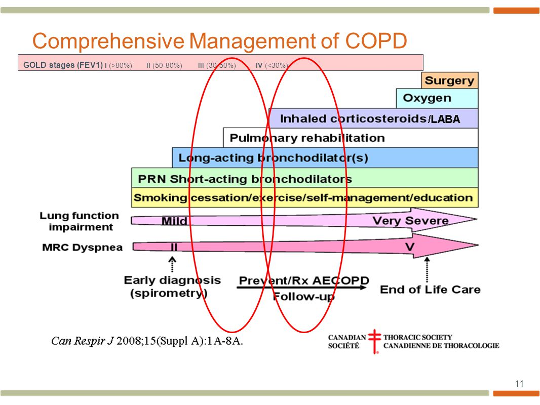 11 Stepwise increased therapy Comprehensive Management of COPD GOLD stages (FEV1) I (>80%) II (50-80%) III (30-50%) IV (<30%)