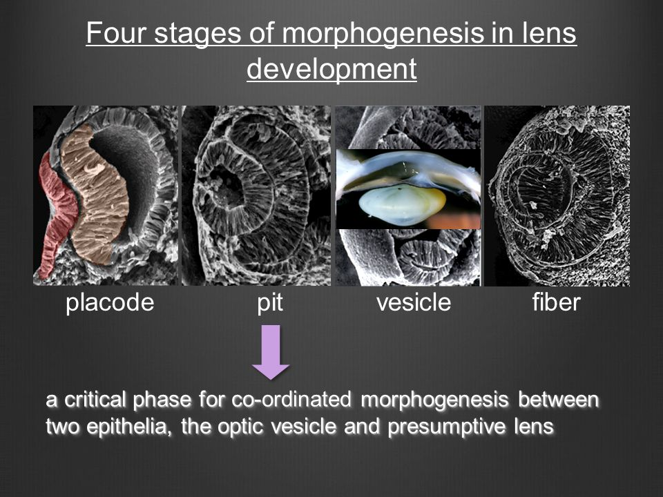placode vesicle fiber pit a critical phase for co-ordinated morphogenesis between two epithelia, the optic vesicle and presumptive lens a critical pha