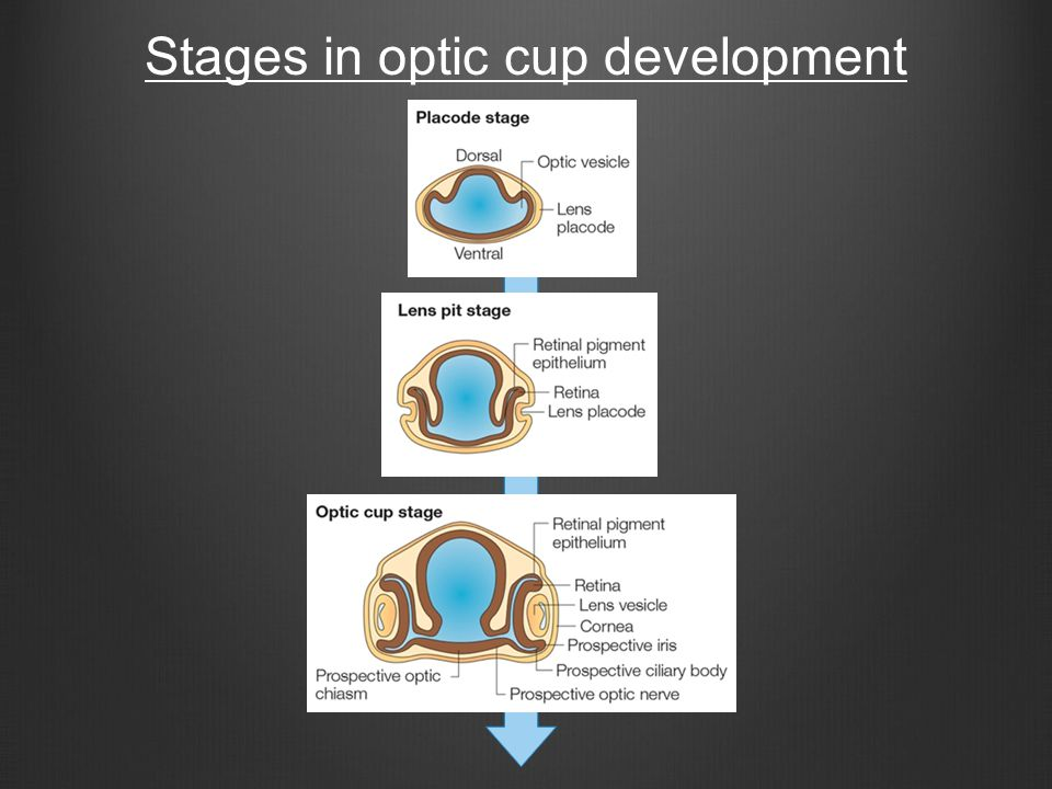 Stages in optic cup development