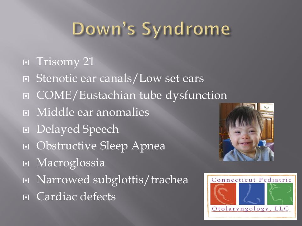  Trisomy 21  Stenotic ear canals/Low set ears  COME/Eustachian tube dysfunction  Middle ear anomalies  Delayed Speech  Obstructive Sleep Apnea 