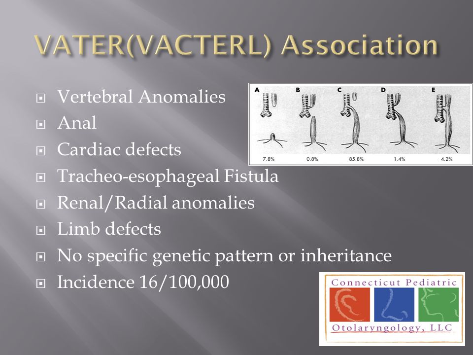 Vertebral Anomalies  Anal  Cardiac defects  Tracheo-esophageal Fistula  Renal/Radial anomalies  Limb defects  No specific genetic pattern or i
