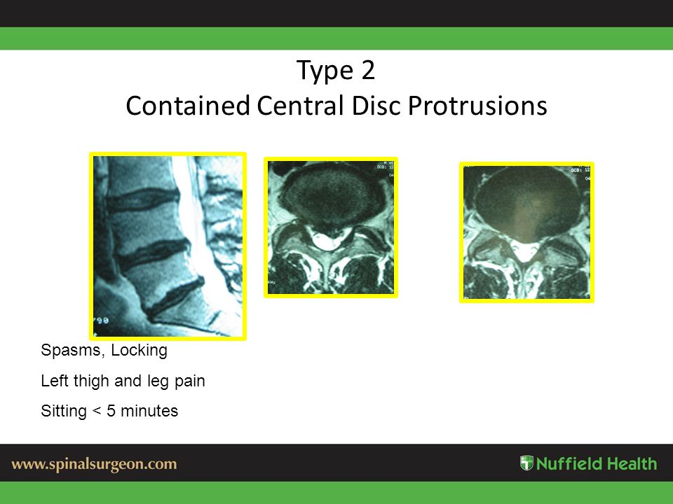 Type 2 Contained Central Disc Protrusions Spasms, Locking Left thigh and leg pain Sitting < 5 minutes
