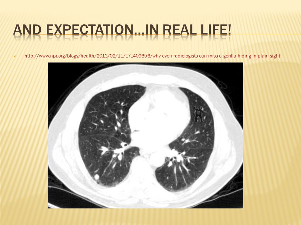  http://www.npr.org/blogs/health/2013/02/11/171409656/why-even-radiologists-can-miss-a-gorilla-hiding-in-plain-sight http://www.npr.org/blogs/health/