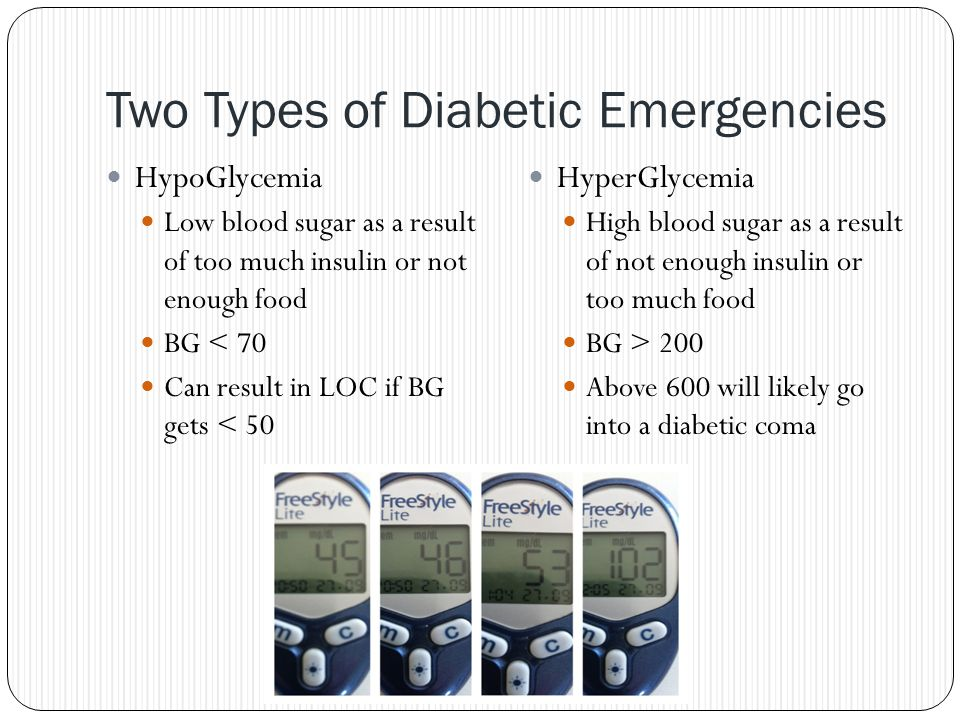Two Types of Diabetic Emergencies HypoGlycemia Low blood sugar as a result of too much insulin or not enough food BG < 70 Can result in LOC if BG gets