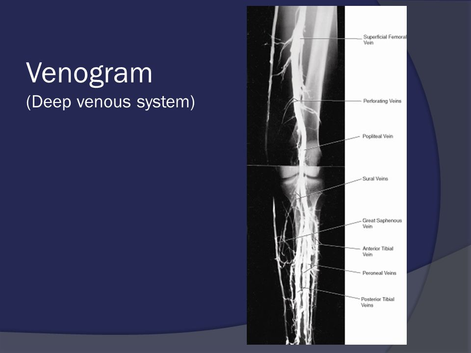 Venogram (Deep venous system)