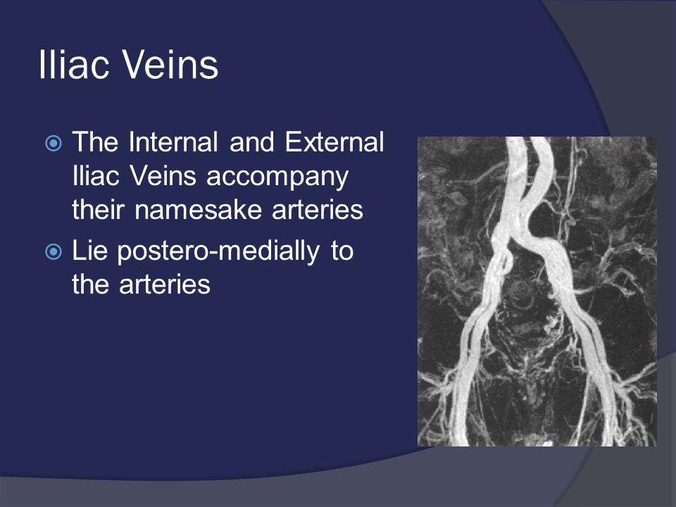 Iliac Veins  The Internal and External Iliac Veins accompany their namesake arteries  Lie postero-medially to the arteries