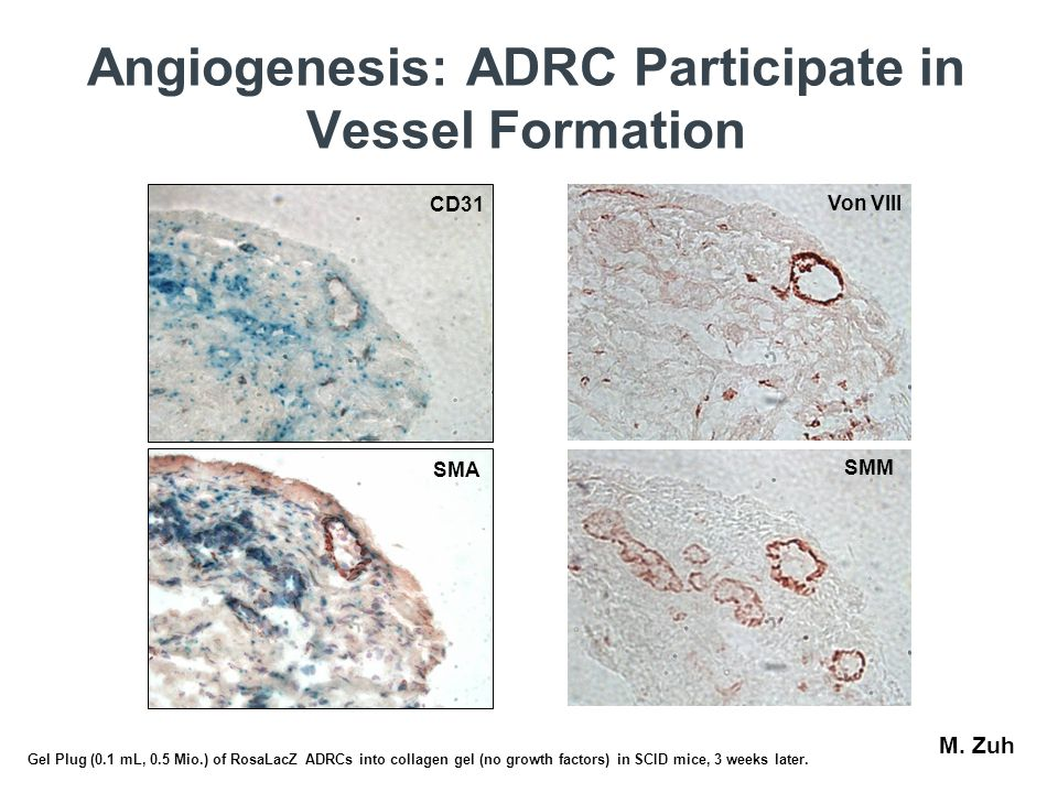 Angiogenesis: ADRC Participate in Vessel Formation CD31 SMA Von VIII SMM M. Zuh Gel Plug (0.1 mL, 0.5 Mio.) of RosaLacZ ADRCs into collagen gel (no gr