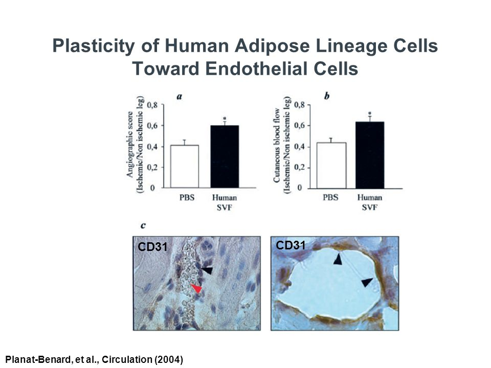 Plasticity of Human Adipose Lineage Cells Toward Endothelial Cells Planat-Benard, et al., Circulation (2004) CD31