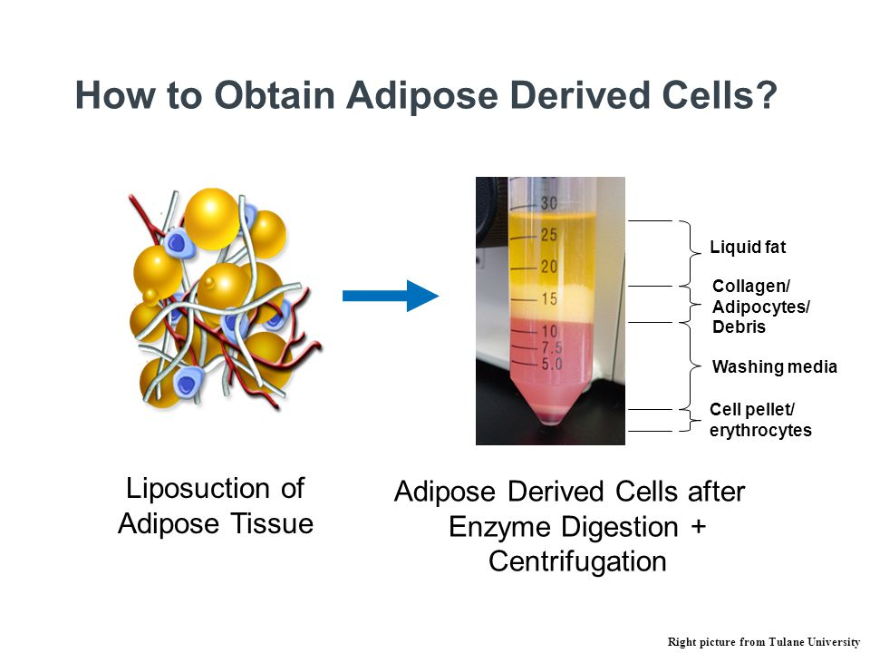 Liposuction of Adipose Tissue How to Obtain Adipose Derived Cells? Washing media Liquid fat Collagen/ Adipocytes/ Debris Cell pellet/ erythrocytes Adi