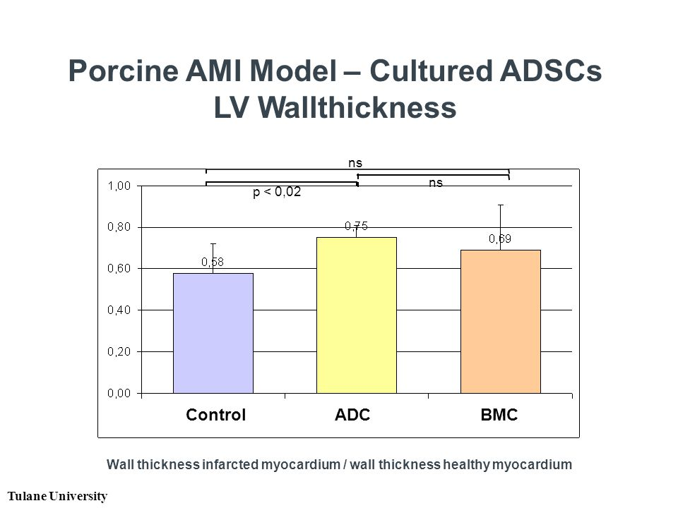 Wall thickness infarcted myocardium / wall thickness healthy myocardium ns p < 0,02 Tulane University Control ADC BMC Porcine AMI Model – Cultured ADSCs LV Wallthickness