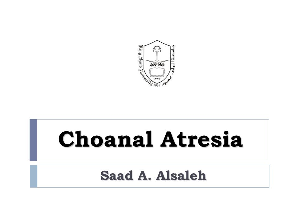 Questions  What is Choanal Atresia (CA). Why does it happen.