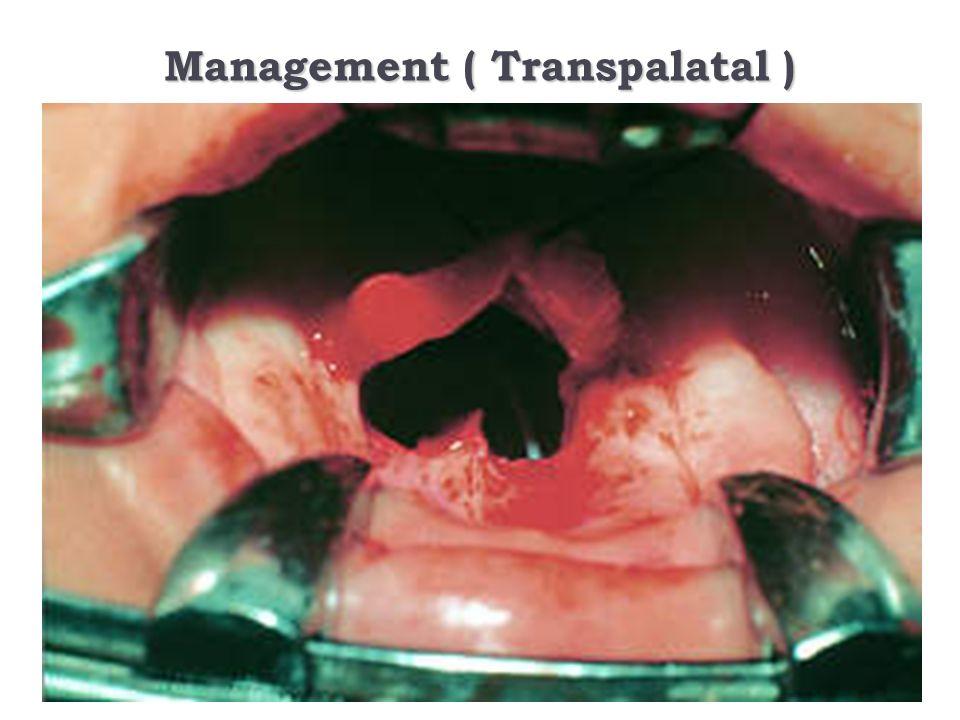 Management ( Transpalatal )