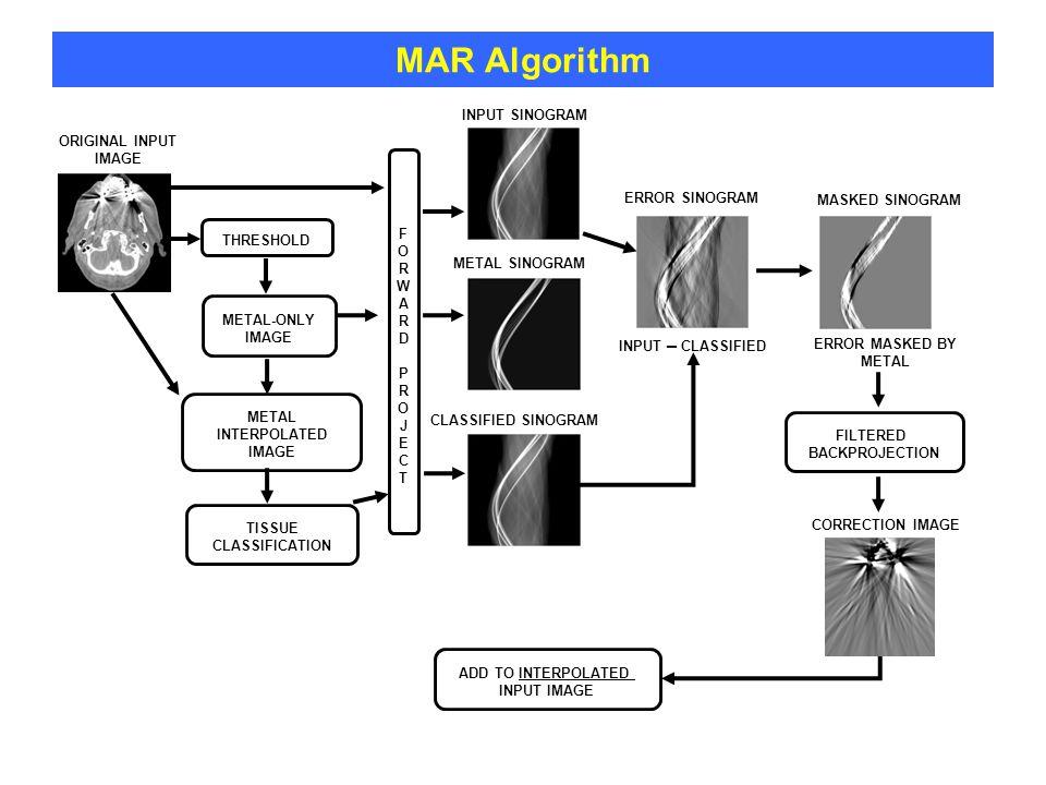 MAR Algorithm MASKED SINOGRAM FILTERED BACKPROJECTION FORWARDPROJECTFORWARDPROJECT ERROR SINOGRAM THRESHOLD METAL-ONLY IMAGE METAL INTERPOLATED IMAGE