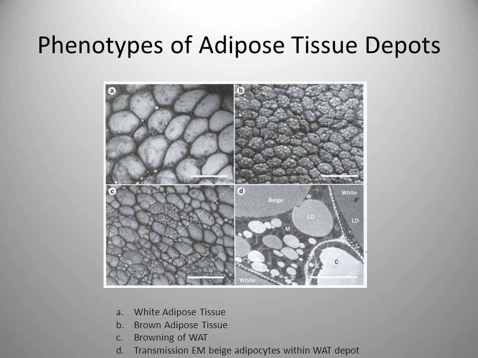 Phenotypes of Adipose Tissue Depots a.White Adipose Tissue b.Brown Adipose Tissue c.Browning of WAT d.Transmission EM beige adipocytes within WAT depot