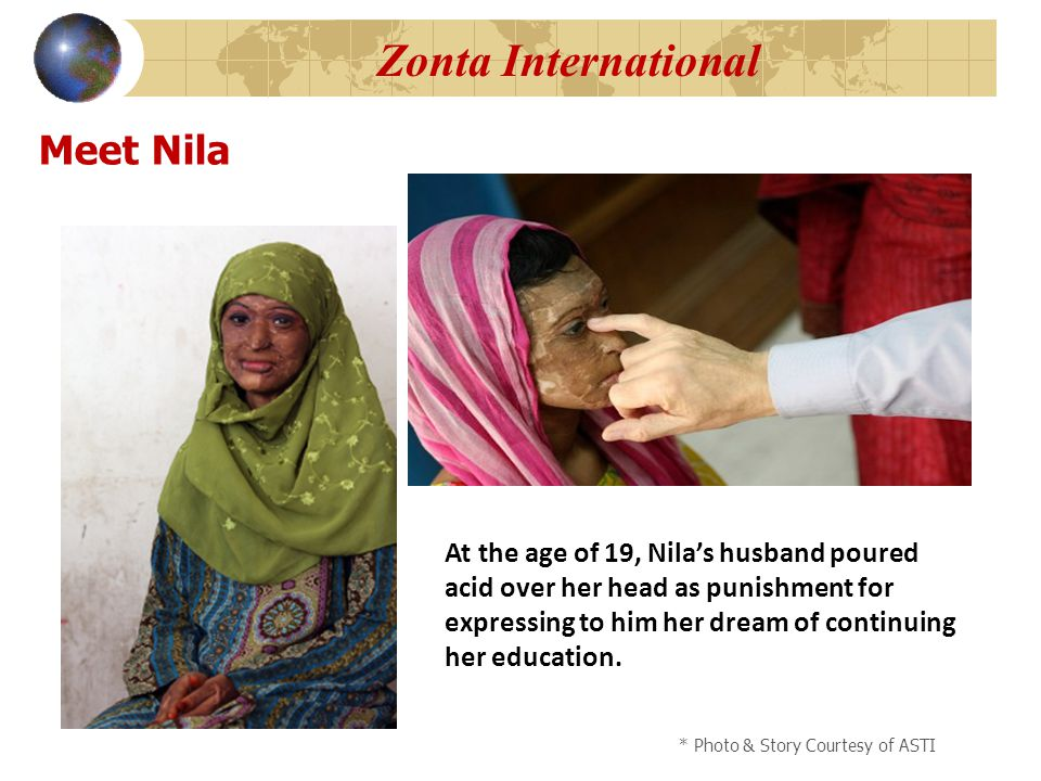 Meet Nila * Photo & Story Courtesy of ASTI Zonta International At the age of 19, Nila's husband poured acid over her head as punishment for expressing to him her dream of continuing her education.