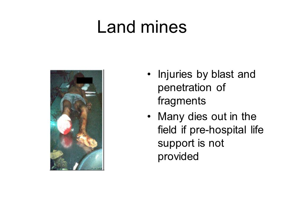 Land mines Injuries by blast and penetration of fragments Many dies out in the field if pre-hospital life support is not provided