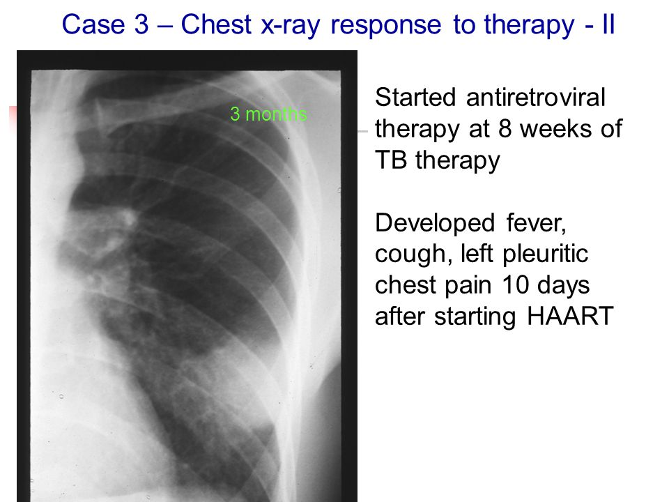 Case 3 – Chest x-ray response to therapy - II 3 months Started antiretroviral therapy at 8 weeks of TB therapy Developed fever, cough, left pleuritic chest pain 10 days after starting HAART