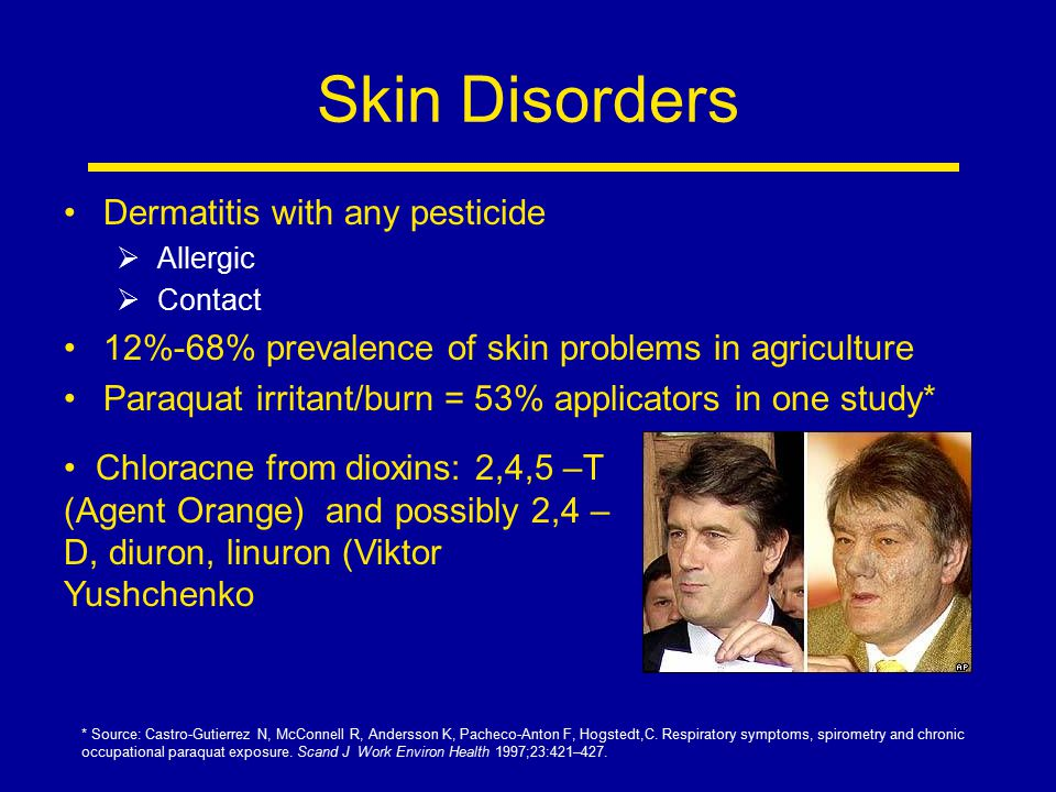 Skin Disorders Dermatitis with any pesticide  Allergic  Contact 12%-68% prevalence of skin problems in agriculture Paraquat irritant/burn = 53% appl