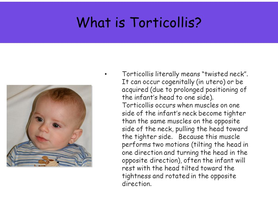 What is Torticollis. Torticollis literally means twisted neck .