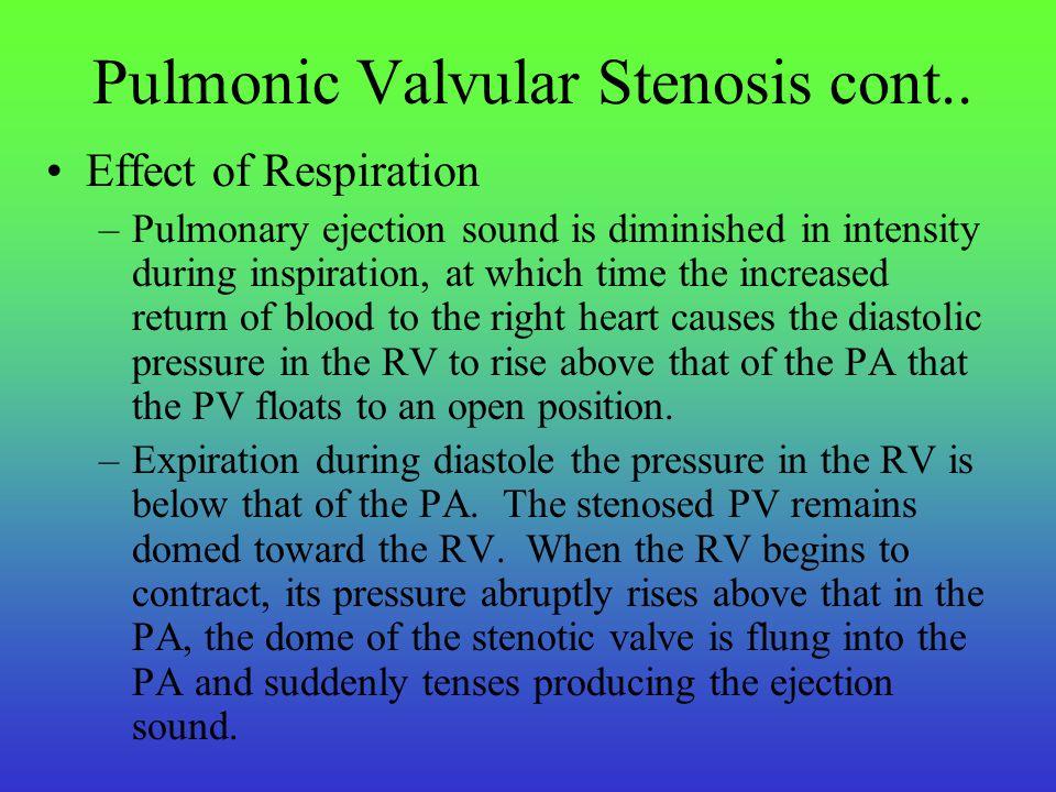 Pulmonic Valvular Stenosis cont..