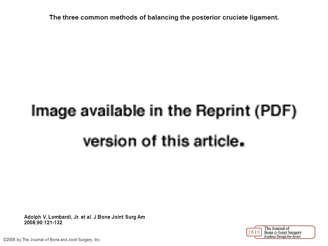 The three common methods of balancing the posterior cruciate ligament. Adolph V. Lombardi, Jr. et al. J Bone Joint Surg Am 2008;90:121-132 ©2008 by Th