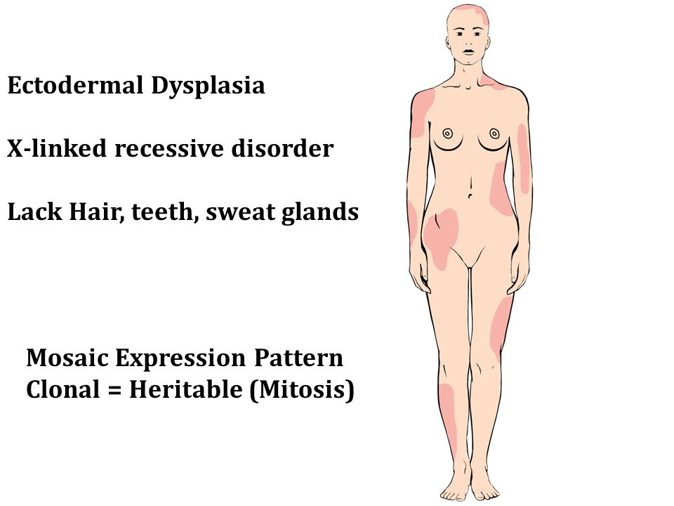 Ectodermal Dysplasia X-linked recessive disorder Lack Hair, teeth, sweat glands Mosaic Expression Pattern Clonal = Heritable (Mitosis)