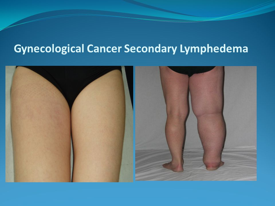 Gynecological Cancer Secondary Lymphedema