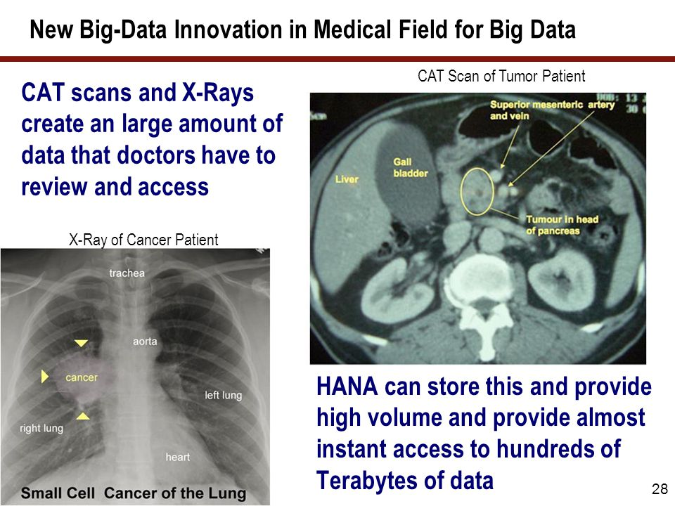 New Big-Data Innovation in Medical Field for Big Data 28 CAT scans and X-Rays create an large amount of data that doctors have to review and access HA