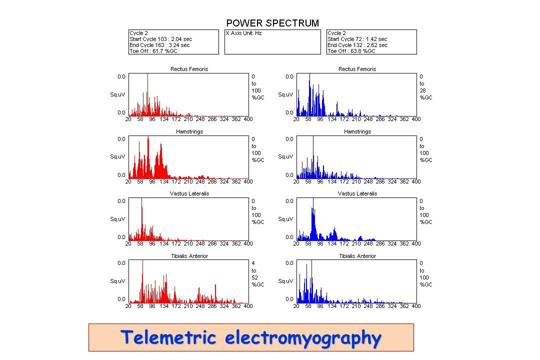 Telemetric electromyography