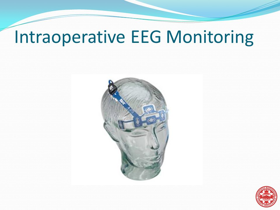 Intraoperative EEG Monitoring