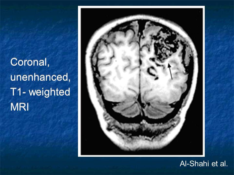 Coronal, unenhanced, T1- weighted MRI Coronal, unenhanced, T1- weighted MRI Al-Shahi et al.