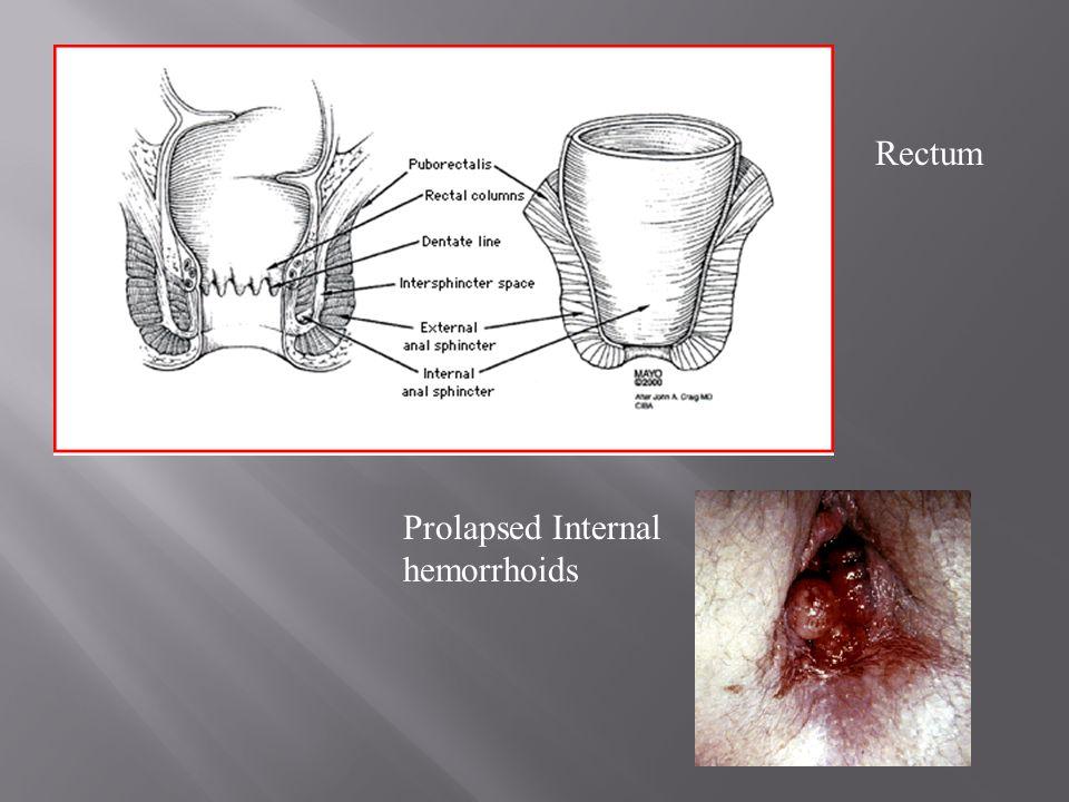 Rectum Prolapsed Internal hemorrhoids
