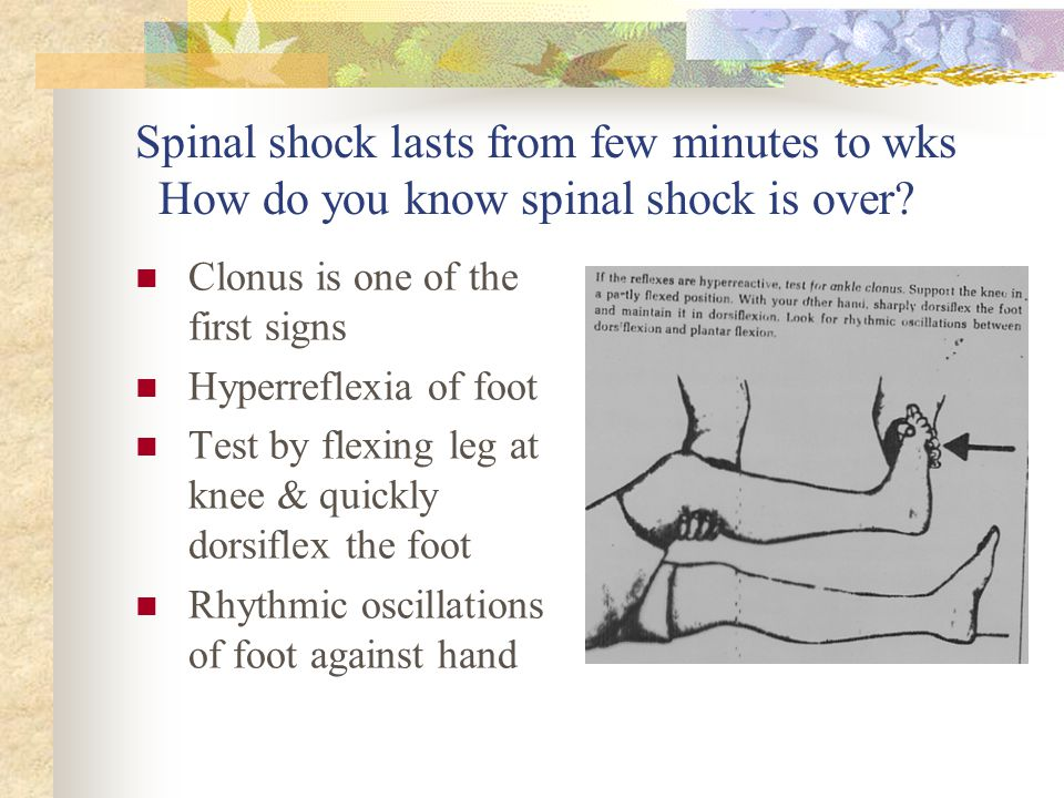 Spinal shock lasts from few minutes to wks How do you know spinal shock is over? Clonus is one of the first signs Hyperreflexia of foot Test by flexin