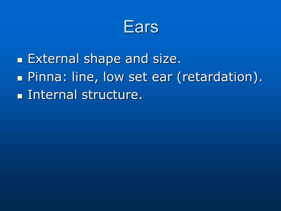 Ears External shape and size. External shape and size. Pinna: line, low set ear (retardation). Pinna: line, low set ear (retardation). Internal struct