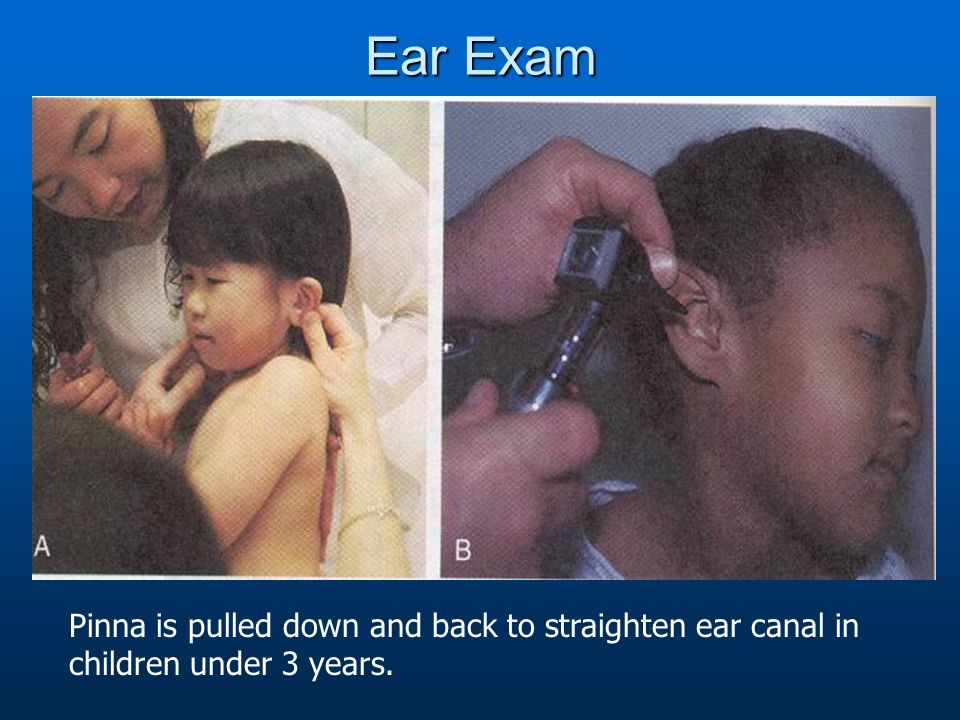 Ear Exam Pinna is pulled down and back to straighten ear canal in children under 3 years.