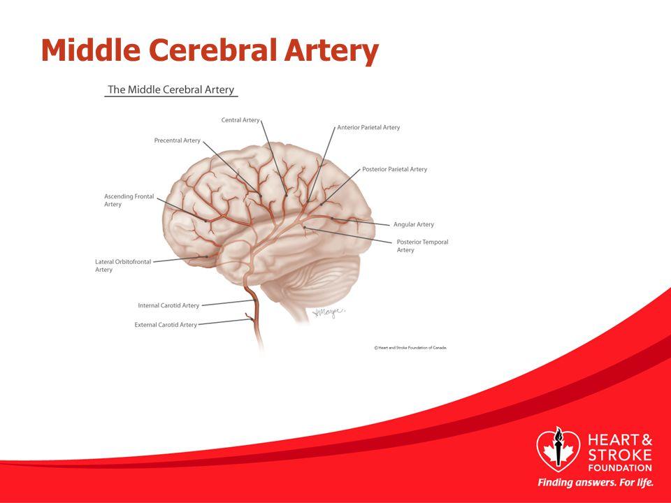 Middle Cerebral Artery