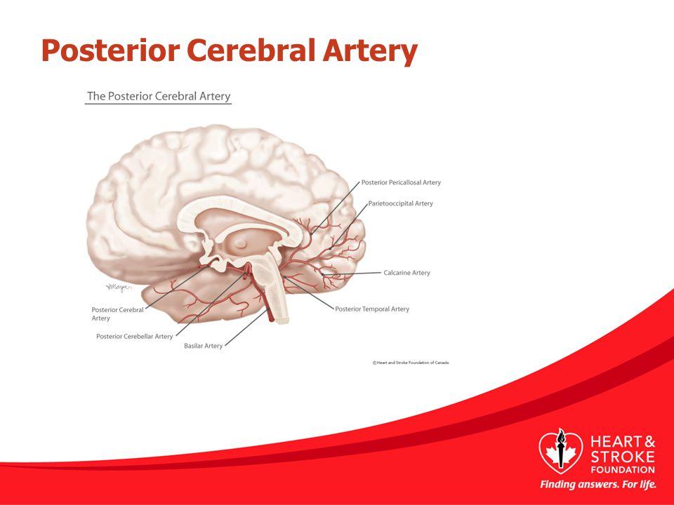 Posterior Cerebral Artery www.strokecenter.org