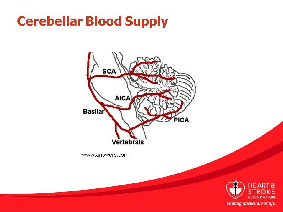 Cerebellar Blood Supply www.answers.com